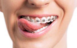 نصائح للتعايش مع آلام تقويم الأسنان