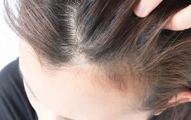 5 وصفات طبيعية لعلاج قشرة الشعر