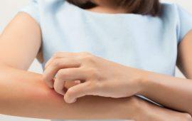 إحذري من الأقمشة التي تسبب حساسية الجلد