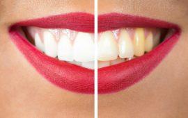 تجنبي هذه الأطعمة التي تسبب اصفرار الأسنان