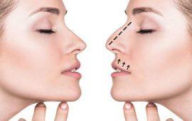 الآن يمكنك تجميل أنفك دون إبرة أو جراحة في خمس دقائق