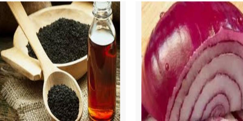 البصل وحبة البركة لعلاج مشكل فراغات الشعر