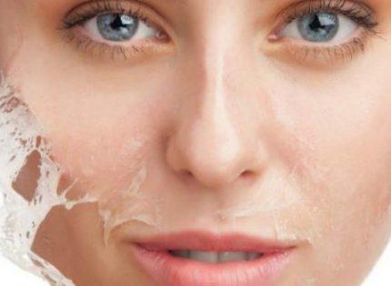 أهم 3 علاجات طبية للحصول على بشرة نجمات هوليوود