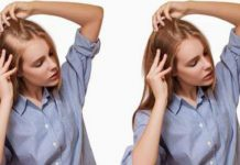 هل عملية زراعة الشعر آمنة؟