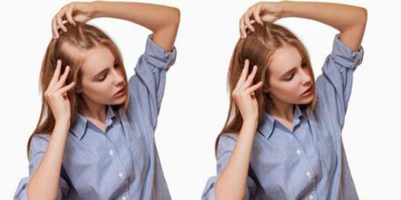 صورة 3 وصفات طبيعية للحفاظ على صحة فروة الرأس