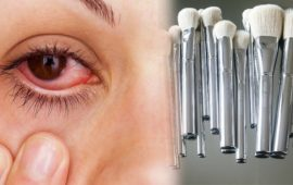 أعراض وأمراض حساسية العيون الناتجة عن أدوات التجميل