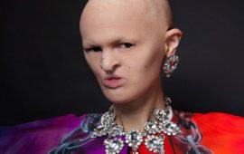 """عارضة أزياء """"فريدة"""" تقلب موازين عالم الجمال"""