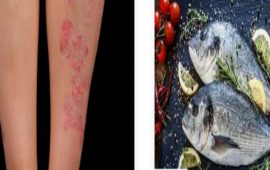 دراسة: تناول السمك يقي من الأكزيما والربو