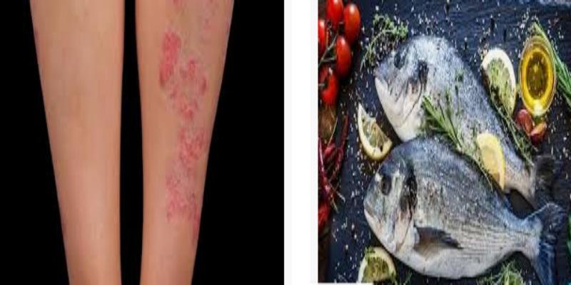 Photo of دراسة: تناول السمك يقي من الأكزيما والربو