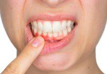 4 وصفات طبيعية لعلاج إلتهاب اللثة