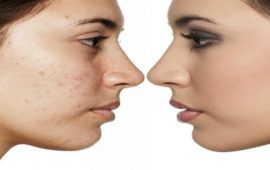 مجموعة كريمات SOTHYS لإزالة البقع السوداء وإعادة توازن البشرة