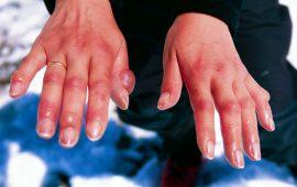 أساب تورم الأصابع في فصل الشتاء ونصائح لعلاجها