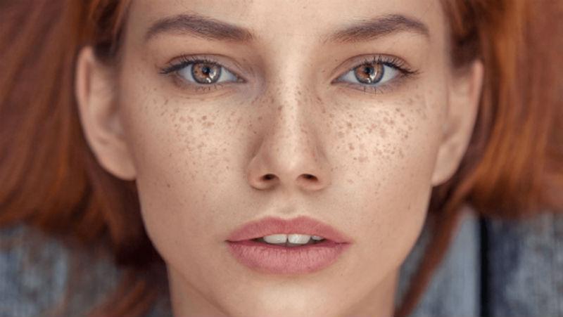 صورة 4 طرق طبيعية لإزالة النمش نهائيا من الوجه