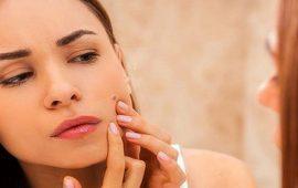 3 نصائح للوقاية من حبوب الوجه قبل الدورة الشهرية