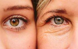 3 طرق طبيعية وسهلة تخلصك من التجاعيد حول العين