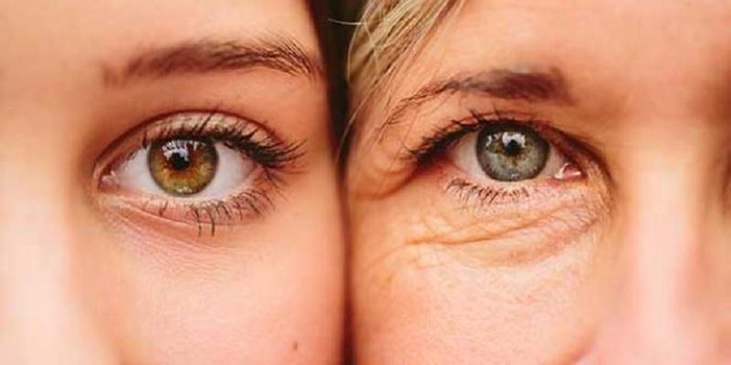 صورة 3 طرق طبيعية وسهلة تخلصك من التجاعيد حول العين