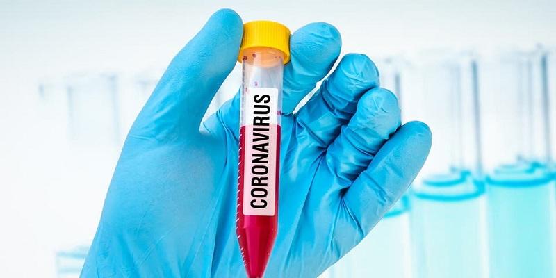 Photo of ما علاقة إرتفاع السكر في الدم بالإصابة بفيروس كورونا؟