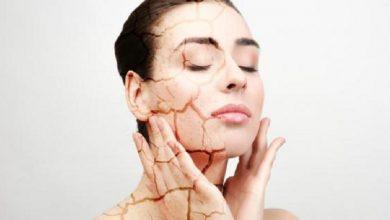 صورة جفاف البشرة في الخريف.. الأعراض وطرق العلاج