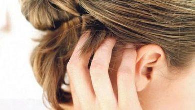 صورة نصائح لتجنب الالتهابات الجلدية بفروة الرأس