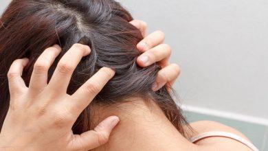 صورة خلطات طبيعية سحرية للتخلص من إلتهابات فروة الرأس