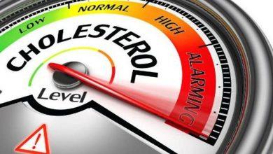 Photo of 4 أسباب رئيسية لإرتفاع الكوليستيرول في الدم