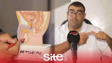 صورة أخصائي في جراحة المسالك البولية يكشف الحل النهائي لمشكل العجز الجنسي – فيديو