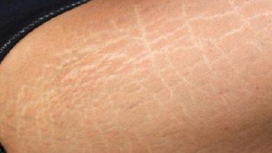 صورة الخطوط البيضاء في الجسم.. كيف تتخلصين منها؟