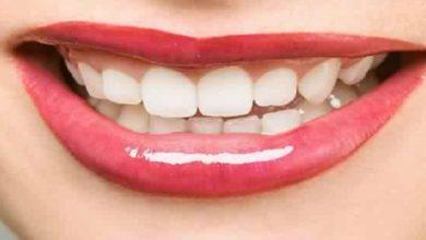 صورة زيوت طبيعية تحمي أسنانك من تراكم الجير