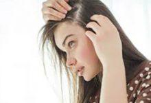 صورة زيوت طبيعية تساعد في علاج فراغات الشعر