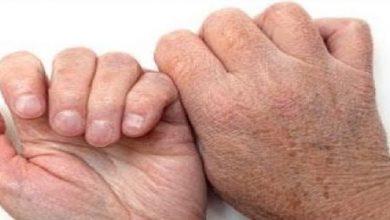صورة وصفتين طبيعيتين للتخلص من جفاف جلد اليدين