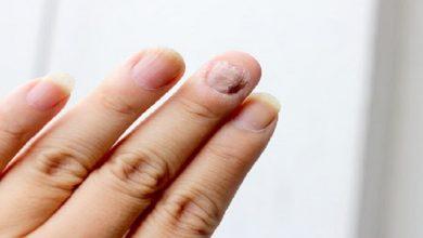صورة أفضل 4 حلول لعلاجات فطريات الأظافر