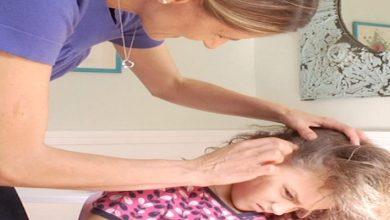 """صورة أمهات ينصحن بـ""""المايونيز"""" لعلاج قمل الرأس عند الأطفال"""