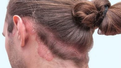صورة 4 حيل تقلل من أعراض صدفية فروة الرأس