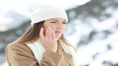 صورة 3 وصفات طبيعية لعلاج جفاف البشرة في الشتاء