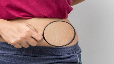 صورة كيف تتجنبين ظهور الخطوط البيضاء على جسمك؟