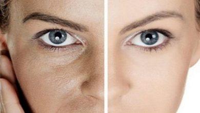صورة 4 نصائح لحماية بشرتك من المسام الواسعة