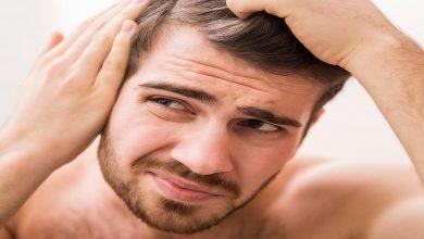 صورة 3 عوامل مرضية تسبب تساقط الشعر