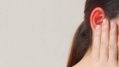 صورة 7 أسباب لسخونة الأذن.. تعرفي عليها