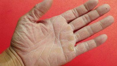 صورة كيف تتخلصي من مشكلة جفاف اليدين؟